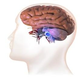 vestibularschwannoma_acousticneuroma